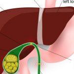اعراض التهاب المرارة وكيفية علاجها وأسبابها الشائعة