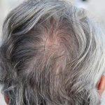 علاج الشعر الأبيض بوصفات طبيعية في المنزل