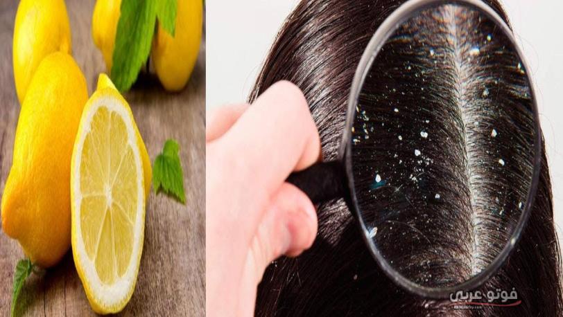 فوائد الليمون للتخلص من قشرة الشعر وعلاجه