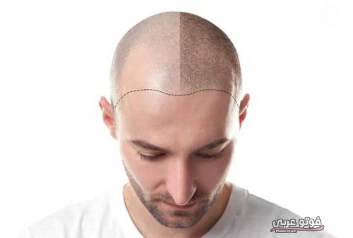 الآثار الجانبية لعملية زراعة الشعر في تركيا