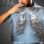 بحث عن التدخين واضراره علي صحة الانسان والرئة