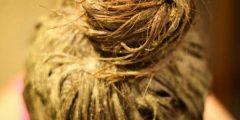 كيف استخدم الحناء للقضاء علي قشرة الشعر