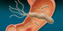 """اسباب الاصابة بجرثومة المعدة """"الميكروب الحلزوني"""" وعلاجه"""